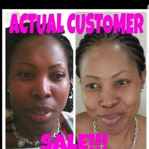 Marvelous results... Kojic lightening soap